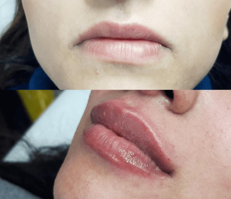 lip-filler-comparison